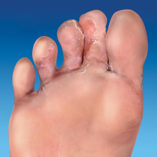 athlete's foot symptoms