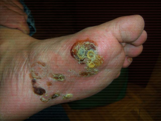 athlete foot blisters