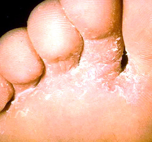 athlete foot diseases