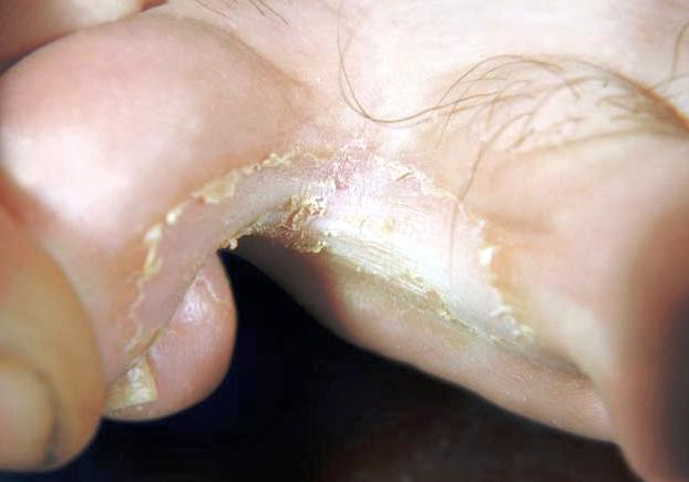 athlete foot in the body