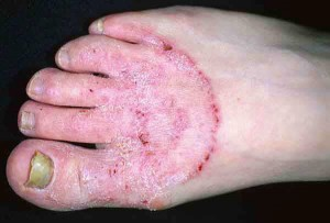 athlete foot on hands