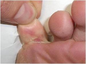 athlete foot remedies