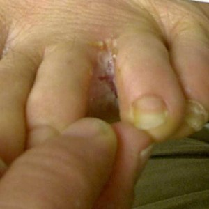 athletes foot cures