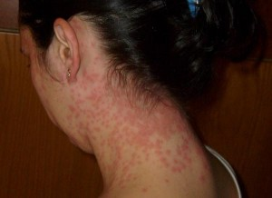 candida groin pain
