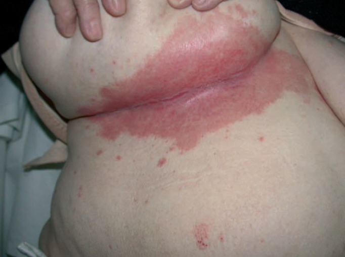Breast yeast infection
