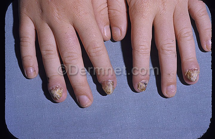 chronic mucocutaneous candidiasis