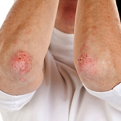 chronic skin disease scaly patches