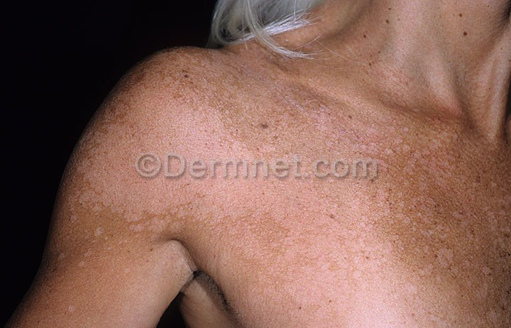 define dermatomycosis