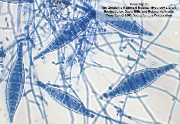 dermatomycosis dermatophytes