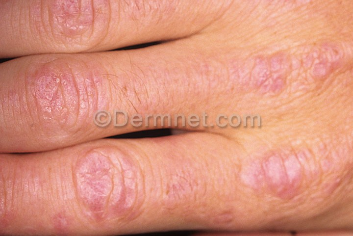 Rash : Check Your Symptoms and Signs – MedicineNet