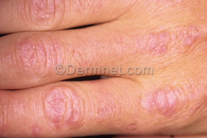 dermatomyositis pictures
