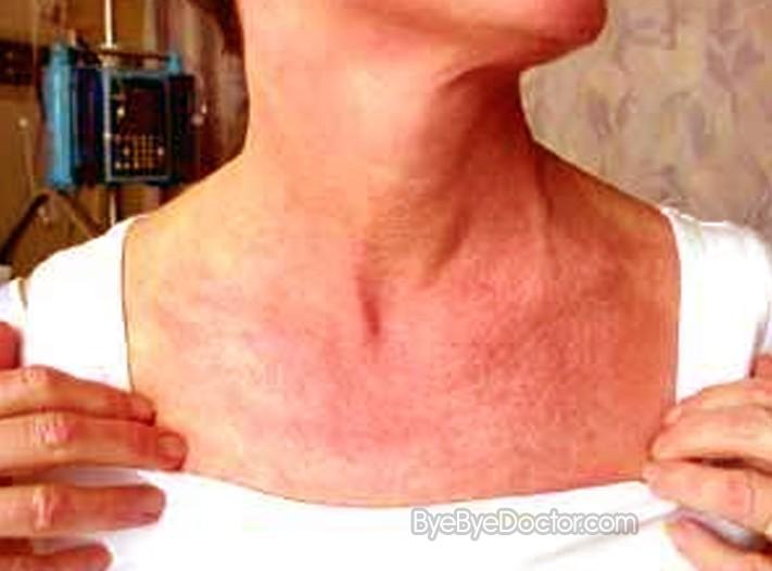 dermatomyositis symptoms