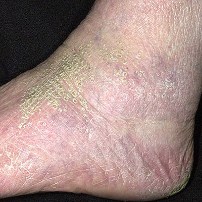 dry scaly skin disease