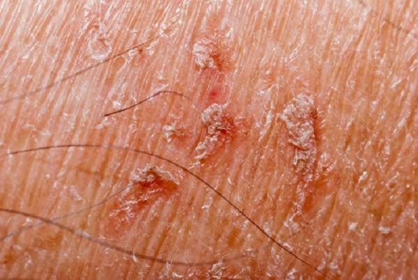 hard scaly skin disease