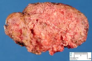 human systemic fungal disease