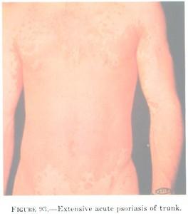 interdigital epidermophytosis