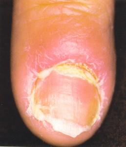 intertrigo diaper rash pictures