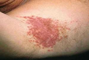 intertrigo yeast infection in skin folds