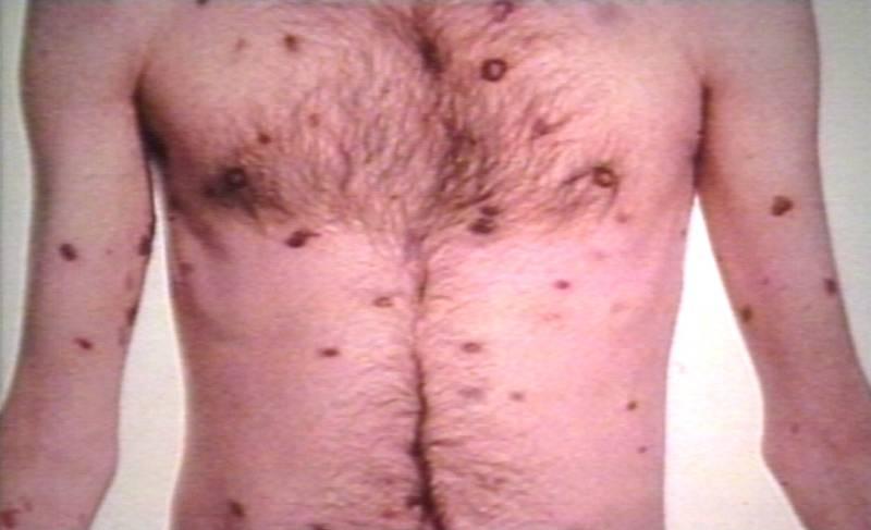 kaposi's disease sarcoma