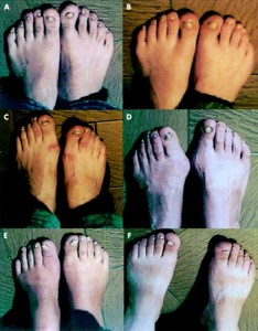 mucocutaneous disease