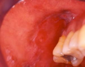 mucocutaneous ulceration