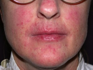 oral candidiasis on lips