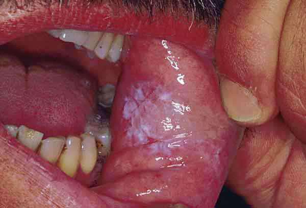 oral candidiasis symptoms and signs