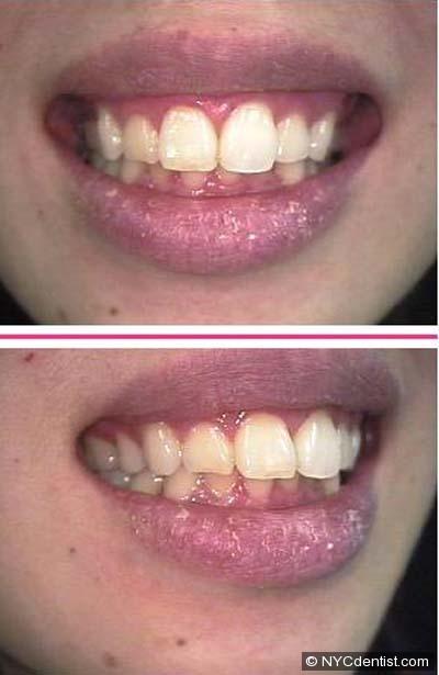 oral candidiasis upper lip pictures