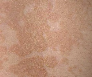 pictures of tinea versicolor on skin