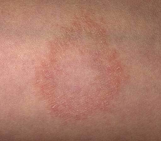 pityriasis rosea and pregnancy