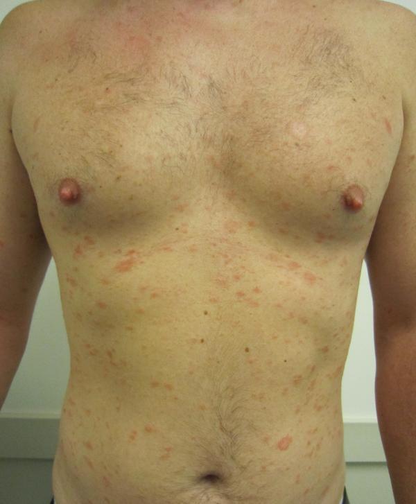 pityriasis rosea cause