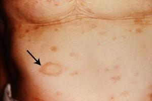 pityriasis rosea diagnosis