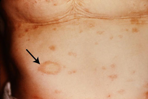 pityriasis rosea diagnosis