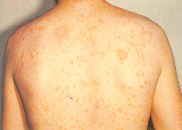 pityriasis rosea herald patch