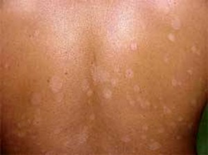 pityriasis versicolor causes