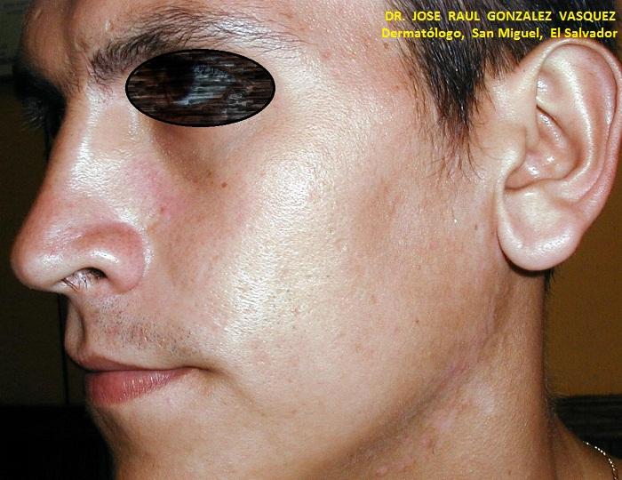pityriasis versicolor imagenes