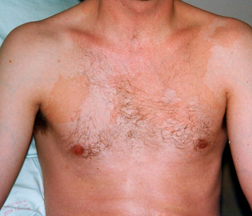 pityriasis versicolor images