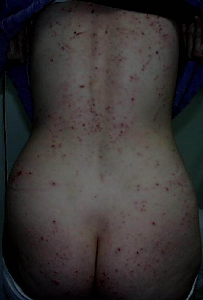 pityriasis versicolor natural treatment