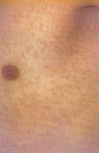 pityriasis versicolor photo