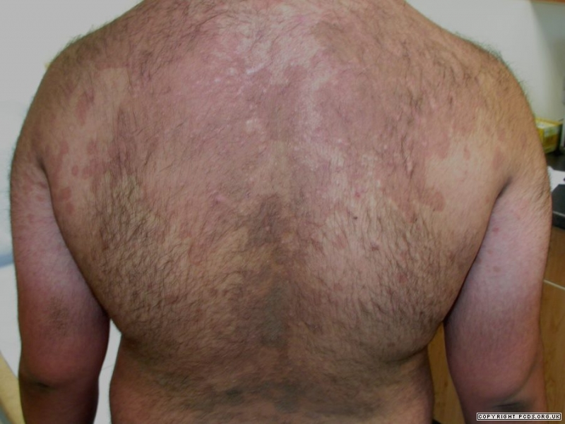 pityriasis versicolor treatment