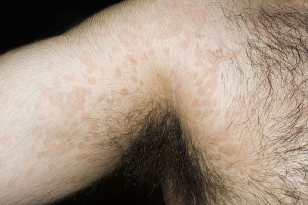 pityriasis versicolor yeast infection