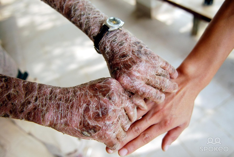 rare scaly skin disease