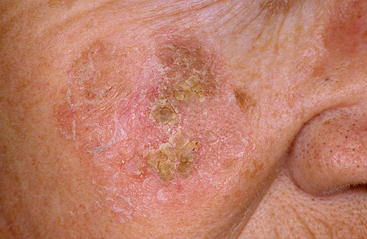 red scaly skin disease