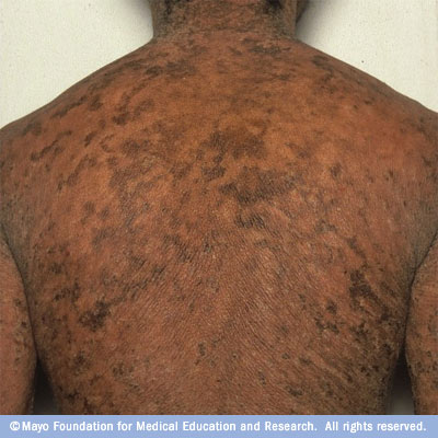 scaly skin disease pictures