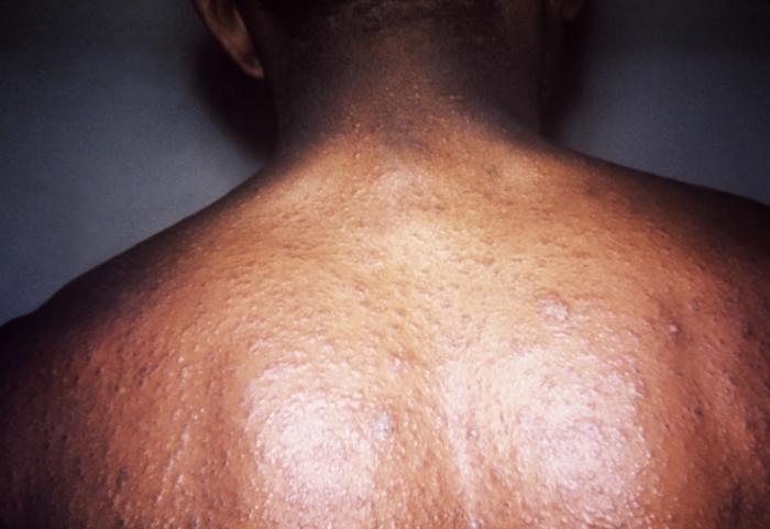 scaly skin diseases