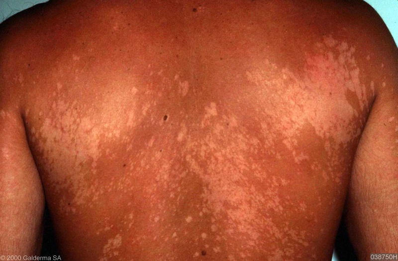 tinea versicolor complications
