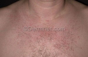 tinea versicolor treatment