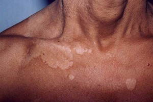 tinea versicolour natural treatment