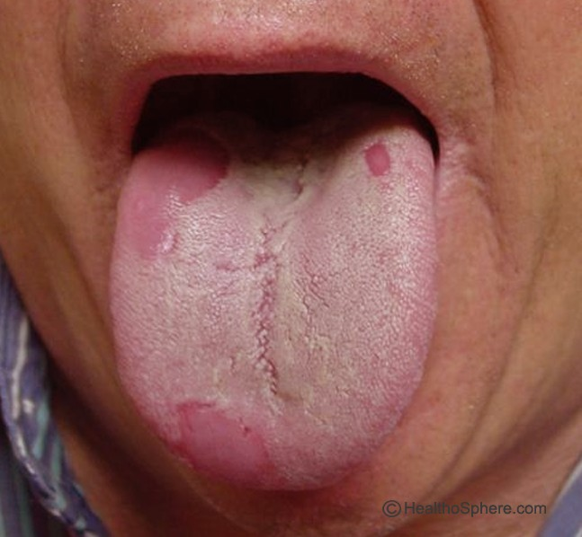 white mouth sores on tongue
