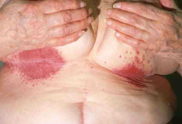 yeast infection smell